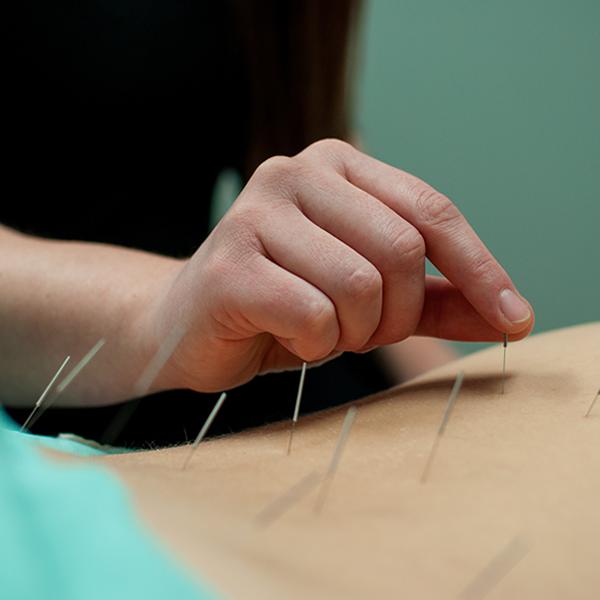 Acupuncture in Burlington